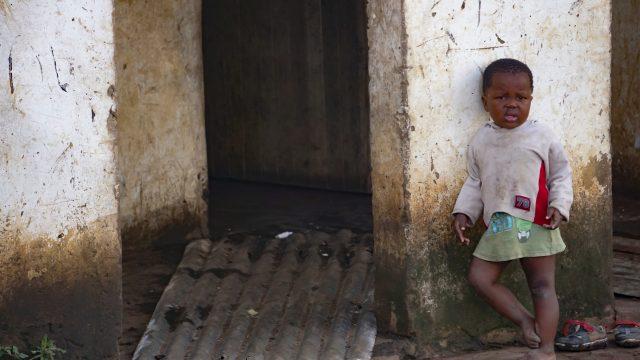 南アフリカは発展途上国なのか?貧困層が人口の半分以上を占める国